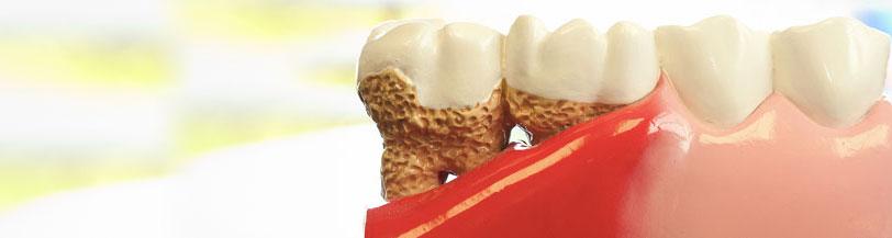 gum disease diagram picture