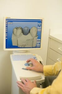 dentist at Fixari Family Dental using CEREC computer technology
