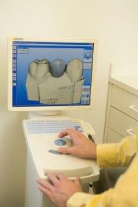 dentist at Fixari Family Dental using CEREC computer technology