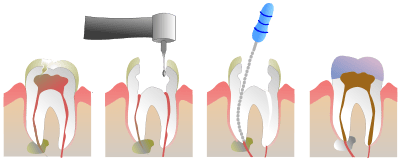 diagram explanation of root canal treatment