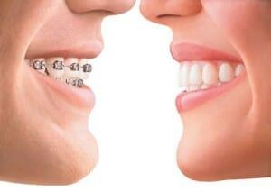 male wearing braces and female wearing Invisalign braces