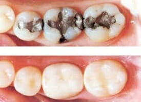 before and after picture of silver filling and composite fillings