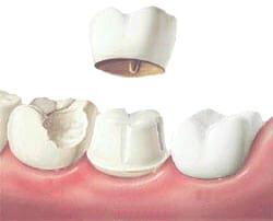 dental crowns on top of teeth