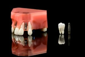 titanium dental implant