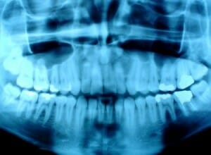 picture of a dental x-ray