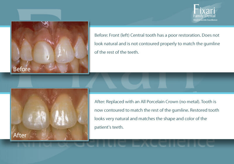 before and after picture: porcelain crowns