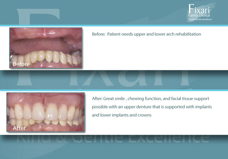 picture of patient with lower crowns and dental implants
