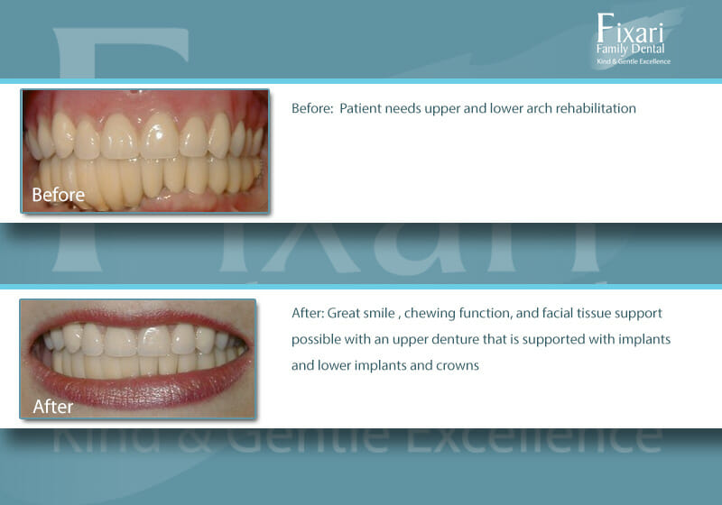 patient with upper and lower arch dental restorations/rehabilitation