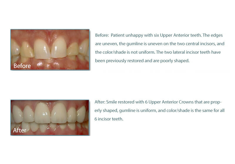 patient of Fixari Family Dental who has 8 newly restored dental crowns