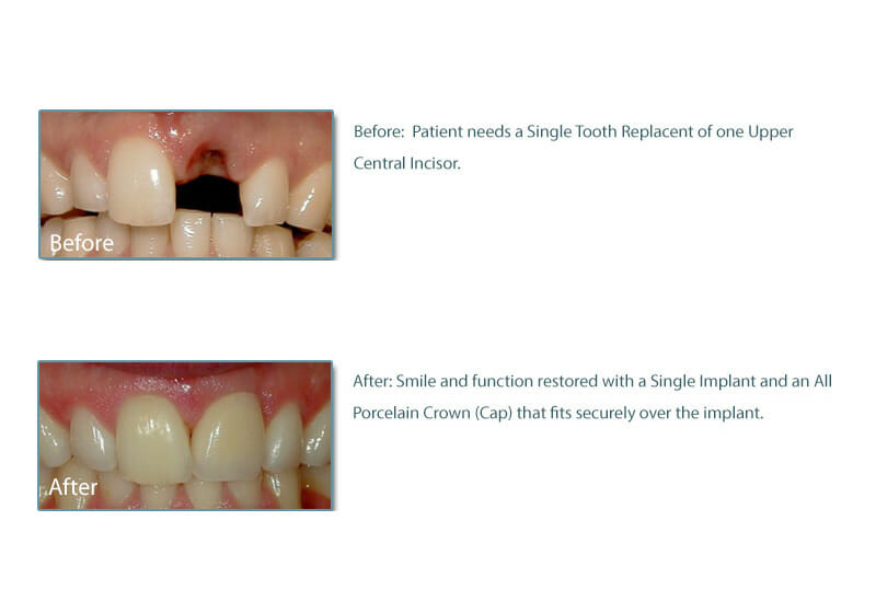 before and after picture of a patient with dental implant and crown