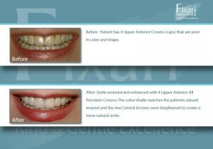 Fixari Family Dental patient before and after teeth whitening