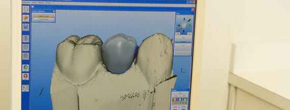 CEREC technology on computer for restorations