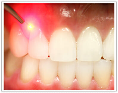 cavity detection in Columbus Ohio