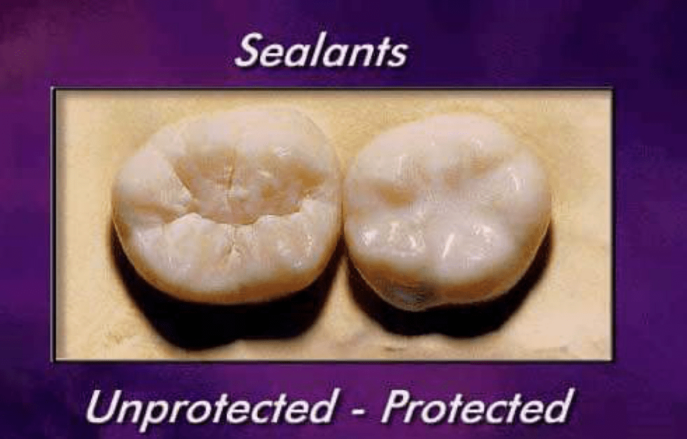 All About Pit Amp Fissure Sealants California Dental Certifications